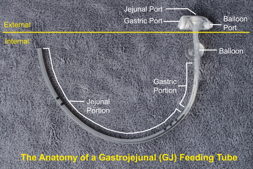 A labeled diagram of a common type of GJ-tube (gastrojejunal or gastrojejunostomy tube). Which is a type of feeding tube that goes in only one hole in the body but connects to both the stomach and intestines separately.