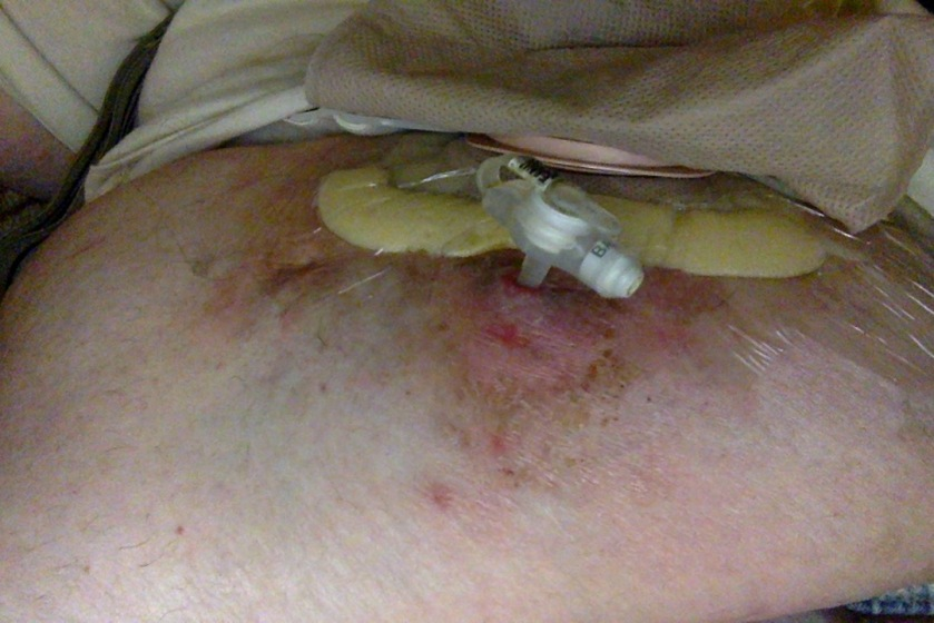 A MIC-KEY button J-tube on a large somewhat scarred-up belly with ostomy bag behind it.