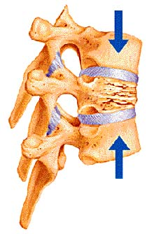 Stress fracture of thoracic vertebra similar to my T11 and T7 fractures.