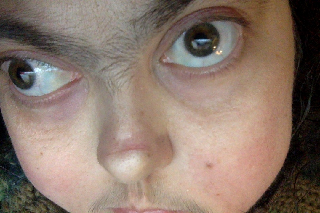 Mel's eyeballs pointing different directions due to congenital myasthenic syndrome.